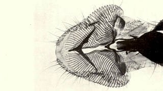 Illustration for article titled 110 Years Ago, These Microscopic Photos Horrified Londoners