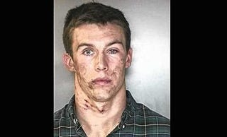Illustration for article titled Syracuse Lacrosse Player Clearly Had A Rough Go Of It Before His Arrest