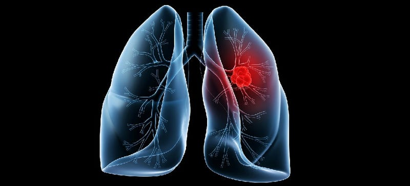 designing cancer vaccine against lung cancer essay Some biological therapies for cancer stimulate the  including skin cancer, non-small cell lung  it was first used medically as a vaccine against.