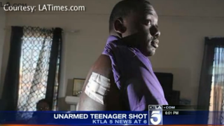 Jamar Nicholson, 15, shows a Los Angeles Times reporter the damage that was done after he was shot Feb. 10, 2015, by a Los Angeles police officer while standing next to a friend who was holding a toy gun.KTLA Screenshot