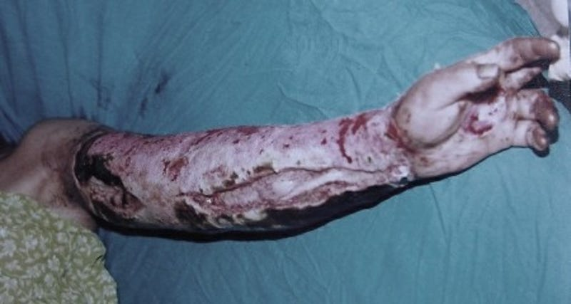 real diseases that could make you act just like a zombie