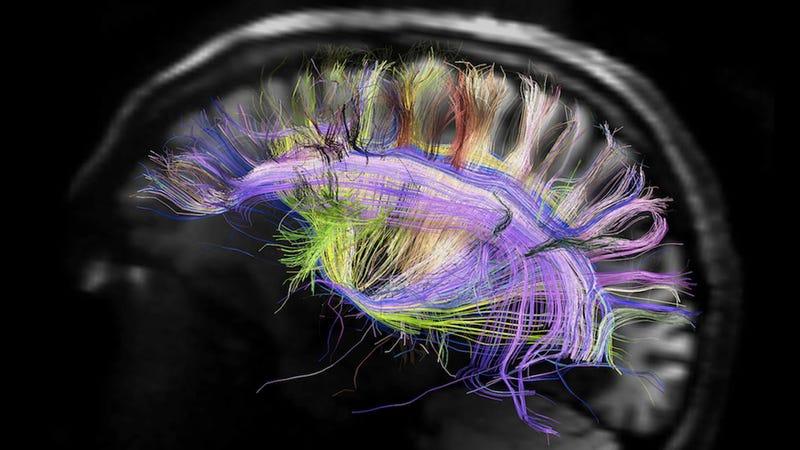 Image: NIH