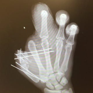 Illustration for article titled Jason Pierre-Paul Shares X-Ray Of His Hand