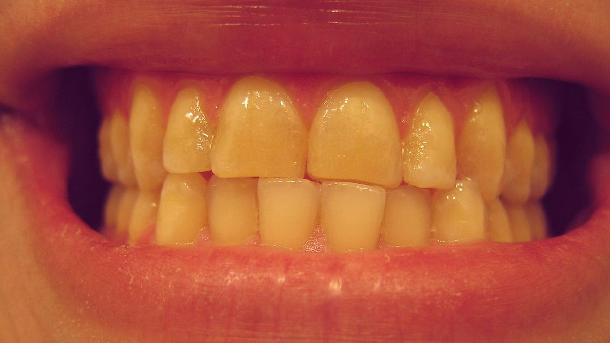 Are You A Nighttime Tooth Grinder Heres How To Telland What To Do