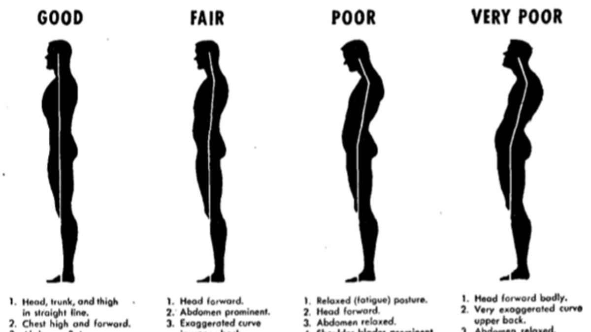 ffded07f51144 Top 10 Ways to Fix Your Terrible Posture