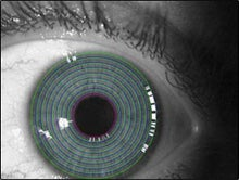 Illustration for article titled xvista Portable Iris Scanner