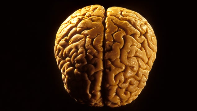 """Yeah, that's a brain,"" confirms everyone who looked at the brain this guy found on a beach"