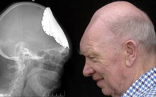 Illustration for article titled Man's Skull Grows Back After 50 Years