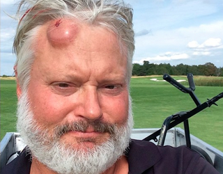 Illustration for article titled Man Hit In Head With Golf Ball, Has Golf-Ball-Sized Welt To Prove It