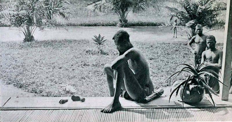 Illustration for article titled Qué hay detrás de la escalofriante imagen de un hombre observando las extremidades cortadas de un niño