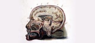 Illustration for article titled Left in the Brain: The Potentially Toxic Residue from MRI Drugs