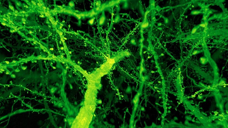Branches of neurons in a mouse cortex