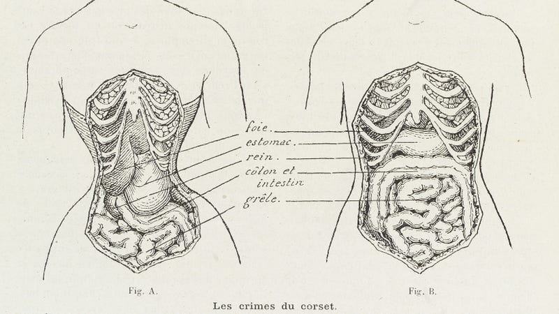 Illustration for article titled Apparently, Corsets Are Just Super Chill Rib Bras