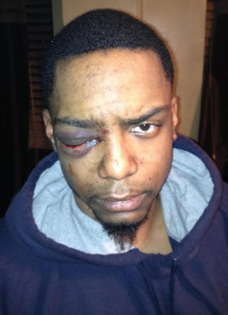 Taj Patterson after he was brutally beaten in the Williamsburg section of Brooklyn, N.Y., in December 2013YouTube screenshot