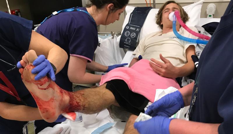 Australia: Joven es atacado por extrañas criaturas marinas