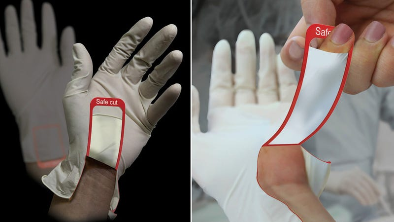 Illustration for article titled Are These Tear-Away Surgical Gloves Actually Safer?