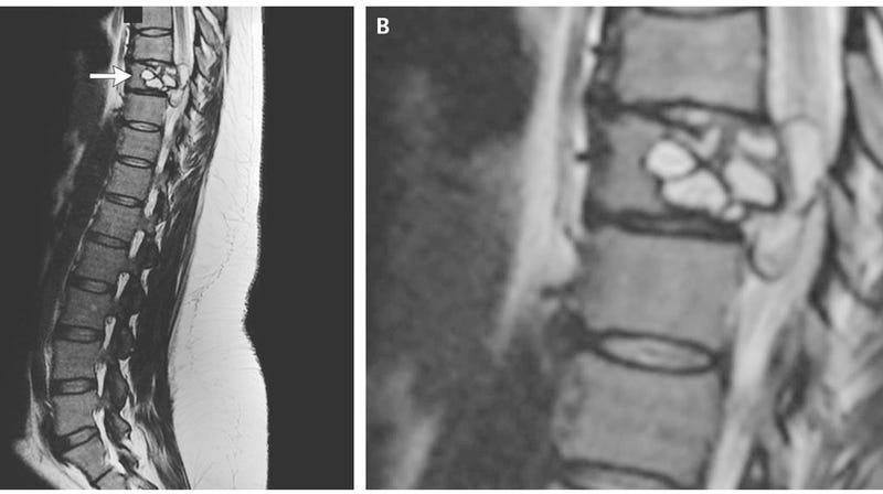 Above, the tapeworm cyst-caused lesion that caused a 35-year-old French woman to lose sensation and feel painful shocks in both her legs.
