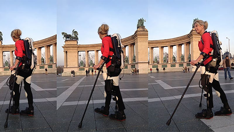 Illustration for article titled Wheelchair User Walks Again With a 3D Printed Exoskeleton