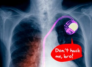 Illustration for article titled Scientists Demo Freaky New Hacking Target: Pacemakers