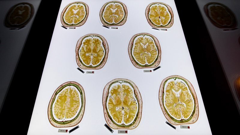 Preserved slices of a human brain for sale to institutions in Germany. (Photo: Getty)