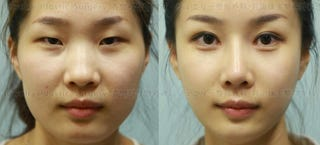 Illustration for article titled Women can't re-enter their home countries after Korean plastic surgery