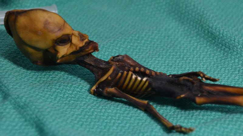 The Ata Skeleton. Scientists recently determined it to be the remains of a fetus with severe genetic mutations.