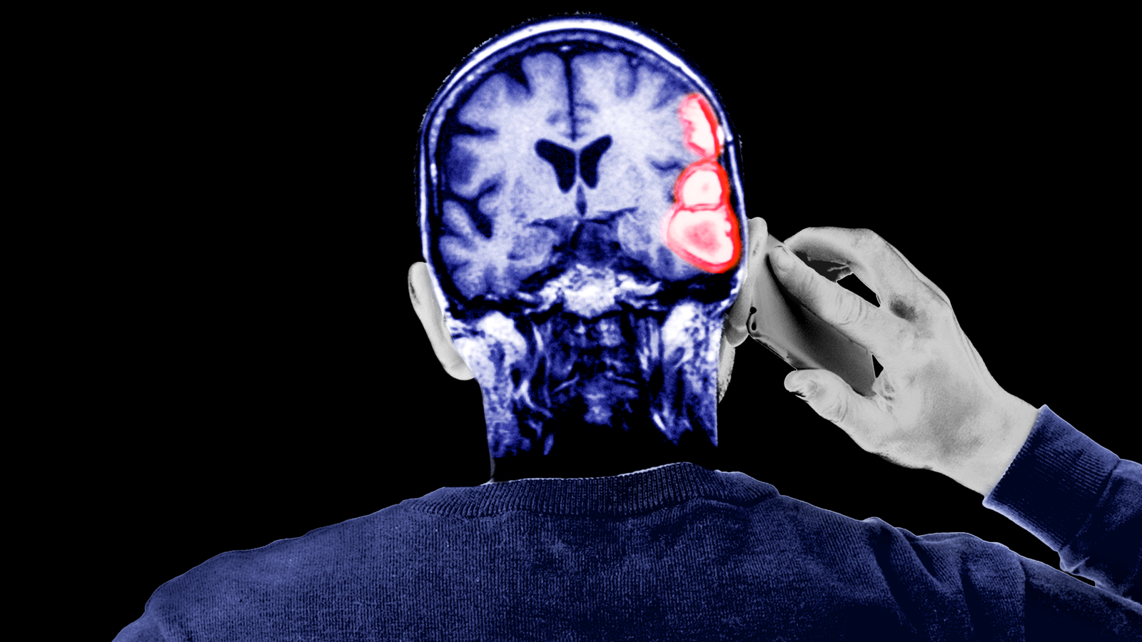 What to Do If You Think You're Having a Stroke