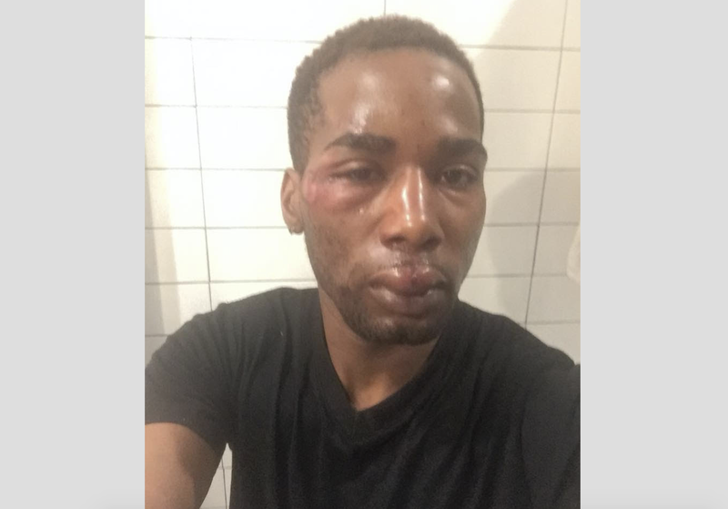 Illustration for article titled Bronx, NY, Man Allegedly Beaten by Pizzeria Employee With Wooden Pizza-Making Tool Demands Justice