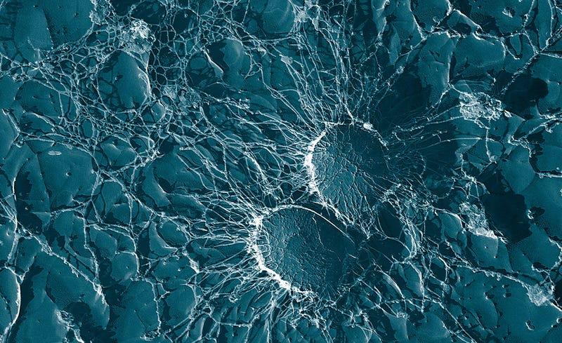 Staphylococcus aureus. Foto: Wkipedia