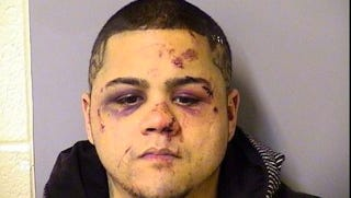 Illustration for article titled This Is What Happens To Your Face When You Try To Rob An MMA Expert