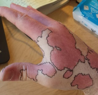 Illustration for article titled Man Turns His Birthmark Into A Map Of An Imaginary World