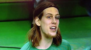 Illustration for article titled Kelly Olynyk's Eye Is Pretty Messed Up