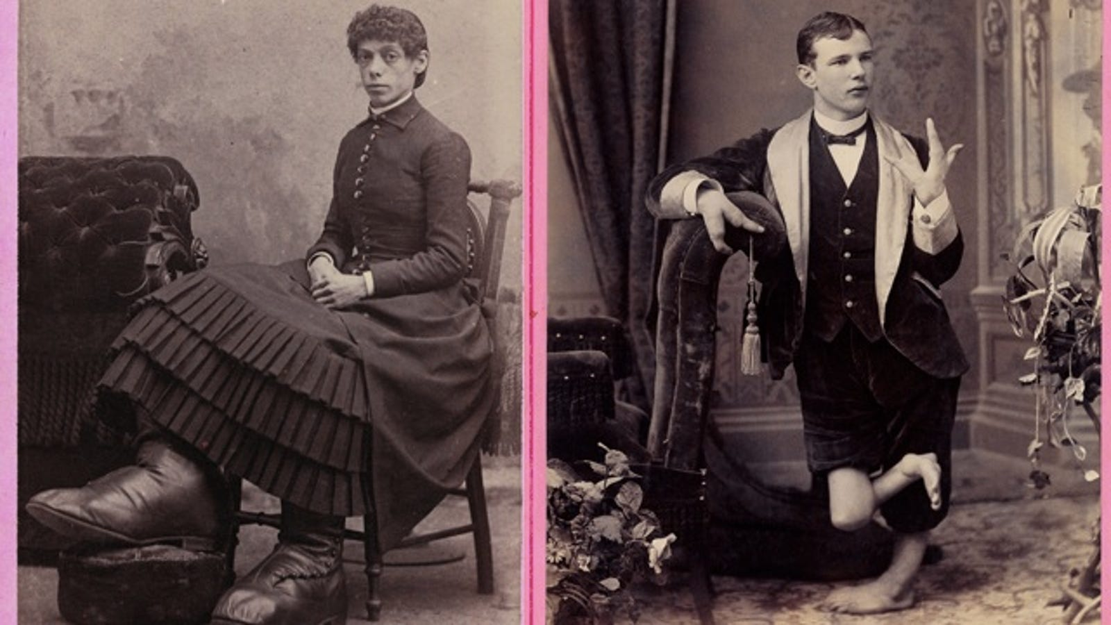 Glamour Shots Of Carnival Freaks Of The 1800s Were Oddly Touching