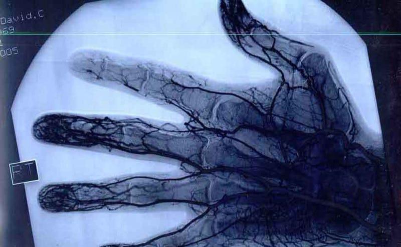 Esta es la inquietante radiografía de los dedos de un profesional del yo-yo tras 26 años de uso diario