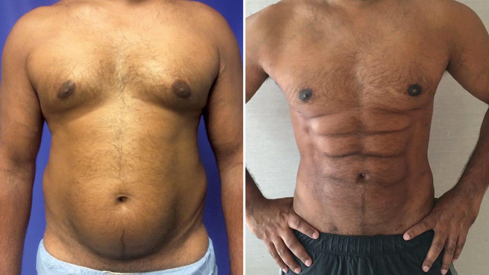 Passer le gymnase, les chirurgiens plasticiens peuvent maintenant sculpter la graisse du ventre dans un étrange six-pack ciselé   – abdo