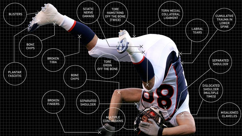 Illustration for article titled What Playing Football Does To Your Body