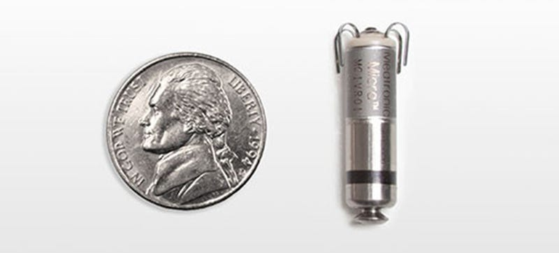 Illustration for article titled This Tiny Metal Pill Is the Smallest Pacemaker Ever Implanted