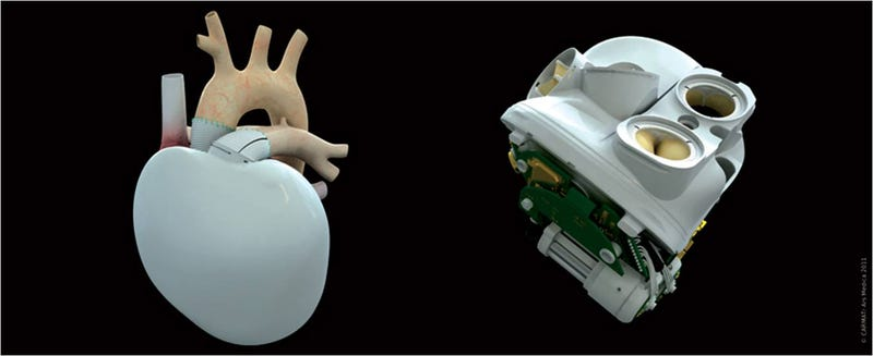 Illustration for article titled Este corazón artificial con tecnología espacial es casi una realidad
