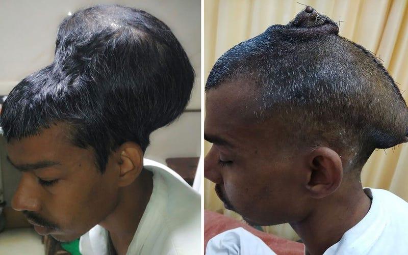 Fases del tumor cerebral de Santlal Pal. Nair Hospital