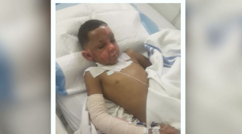 Illustration for article titled 7-Year-Old Missouri Boy Set on Fire With Nail Polish Remover by 8-Year-Old Neighbor, Mom Says