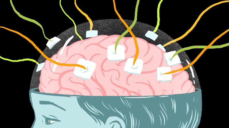 Illustration for article titled I Was A Test Subject For Brain Experiments