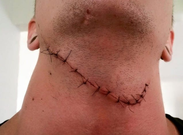Counter-Strike Player Survives Having His Throat Cut