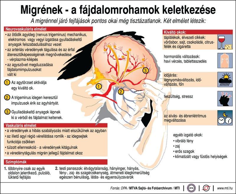 Illustration for article titled Elsőre azt hittem, ma van a fejfájás világnapja, vagy valami ilyesmi