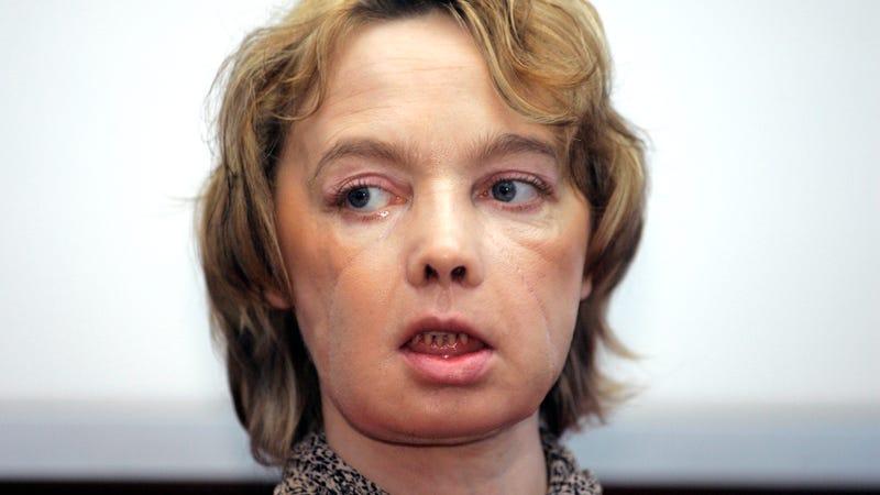 Illustration for article titled Ha muerto la mujer que recibió el primer trasplante de cara tras una década de medicación