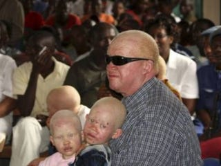 Illustration for article titled Killers Jailed for Murdering Burundi Albinos, Selling Body Parts