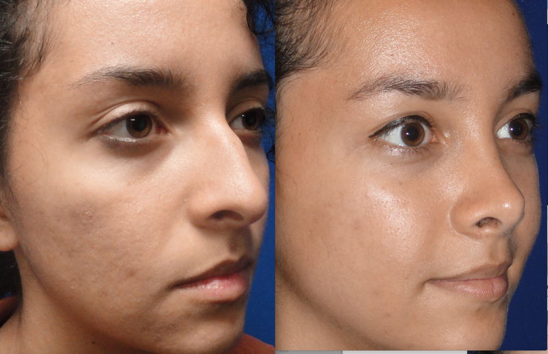 Illustration for article titled Rhinoplasty – What You Must Know About This Cosmetic Nose Procedure