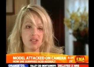 Illustration for article titled British Model Disfigured In Acid Attack