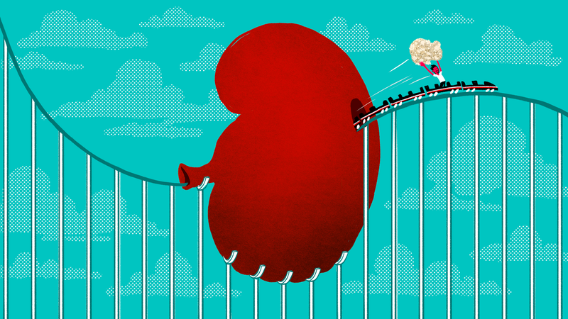 Kidney Stone? Try a Roller Coaster Ride