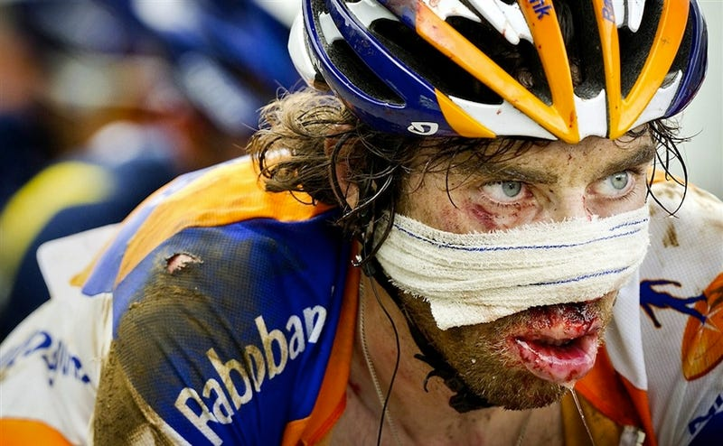 Illustration for article titled Hamburger Face Won't Keep This Tour De France Rider Down