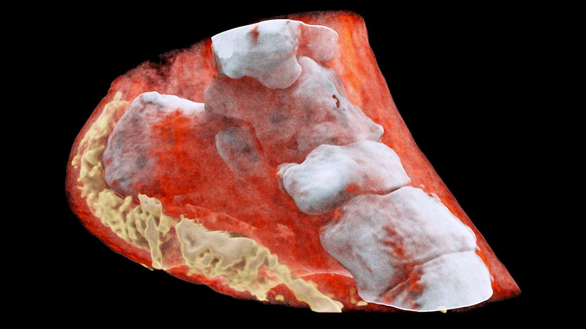 Image result for Father And Son Develop The World's First Full-Color 3D X-Ray